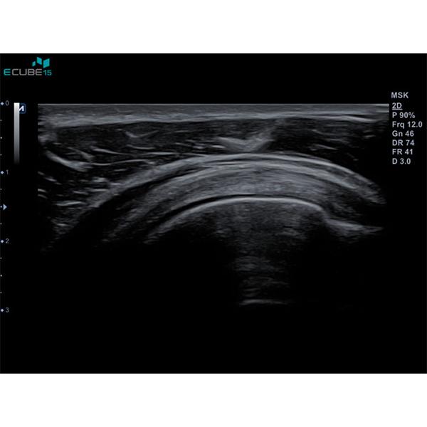Alpinion E CUBE 15 Ultrasound Machine 7