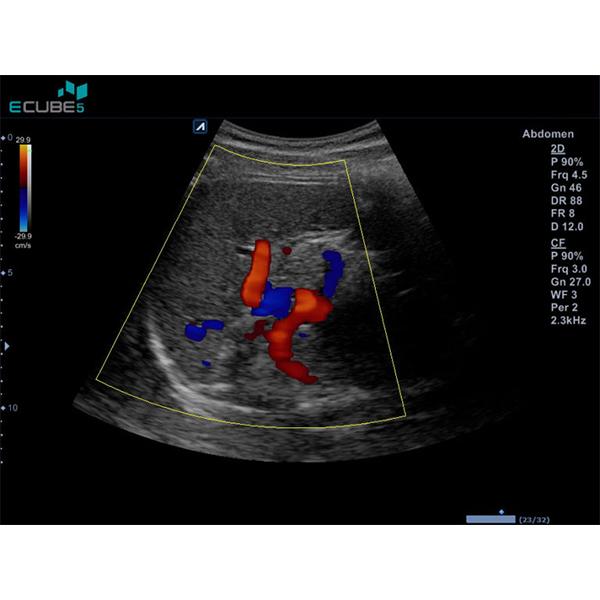 Alpinion E CUBE 5 Ultrasound Machine 10
