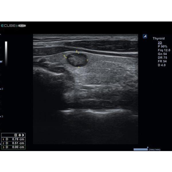 Alpinion E CUBE 9 DIAMOND Ultrasound Machine 5