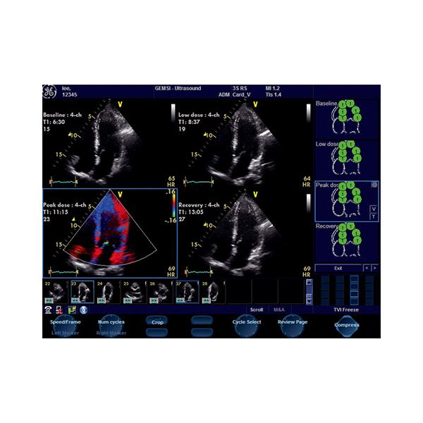 GE Vivid S6 Ultrasound Machine 7