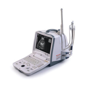 Mindray DigiPrince Ultrasound System