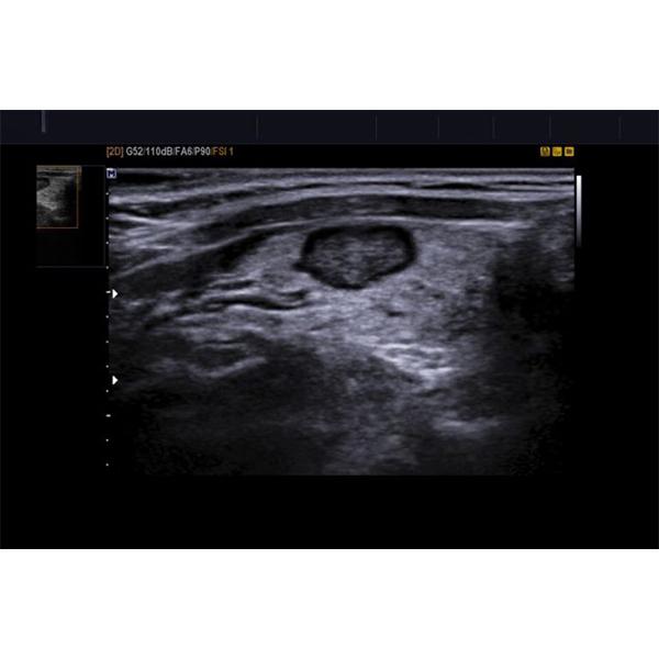 Samsung Accuvix XG Ultrasound Machine 8