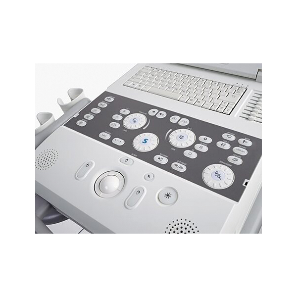 Siemens Acuson P300 Ultrasound Machine 3