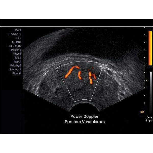 Siemens Acuson X150 Ultrasound Machine 7