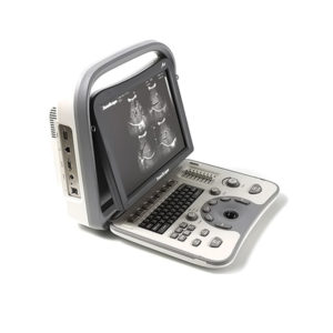 SonoScape A6 Portable Ultrasound Machine 1