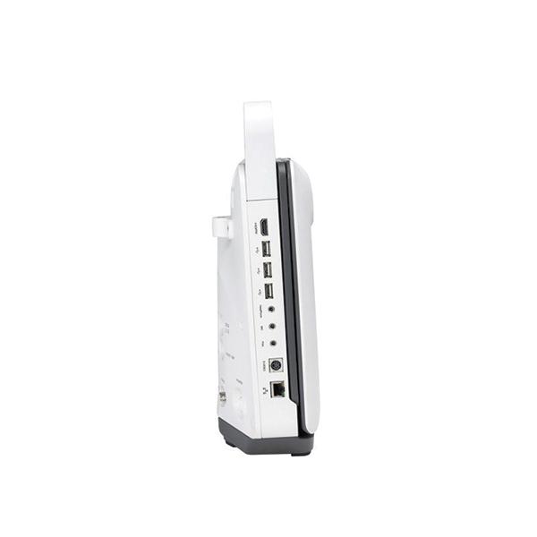 SonoScape E1 Ultrasound Machine 2