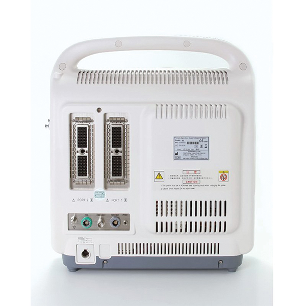 SonoScape S2 Ultrasound Machine 5