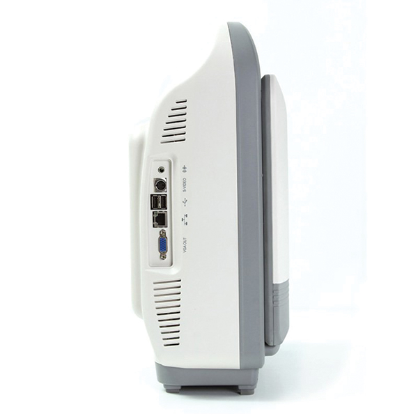 SonoScape S8 Ultrasound Machine 3
