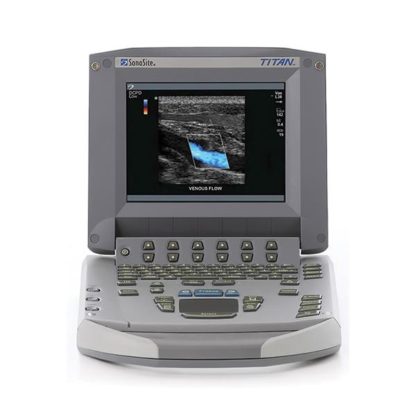 SonoSite Titan Ultrasound Machine 2