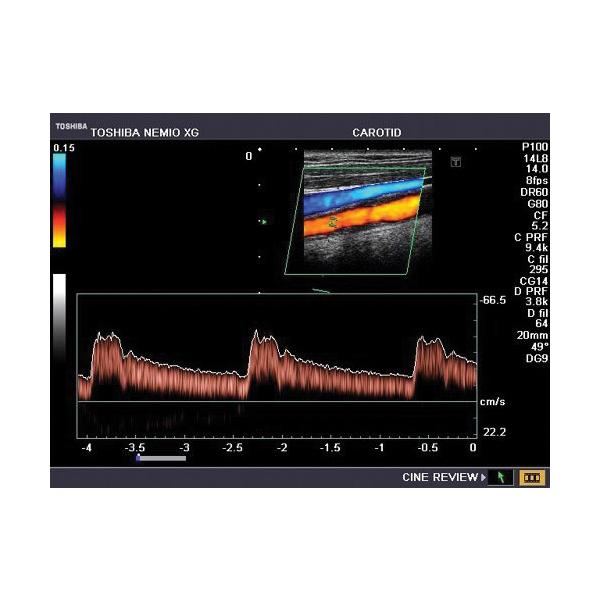 Toshiba Nemio XG Ultrasound Machine 7