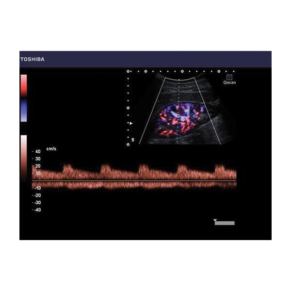 Toshiba Viamo Ultrasound Machine 4