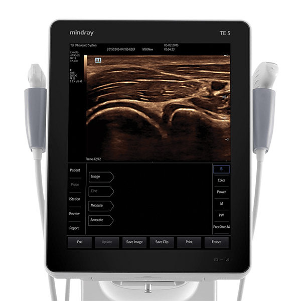 Mindray TE5 Ultrasound Machine 2