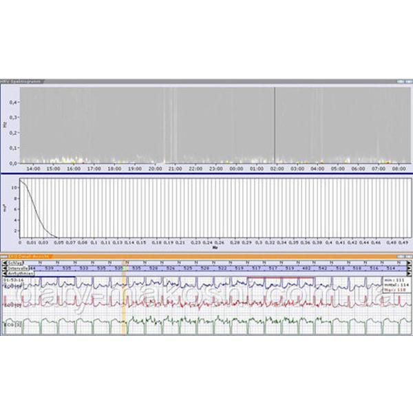 Schiller Medilog Digital Holter Recorder 2