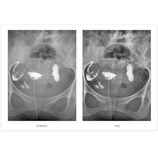 NAOMI Direct Digital Radiography CCD Imaging Sensor 11
