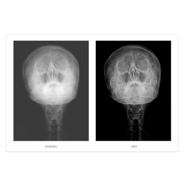 NAOMI Direct Digital Radiography CCD Imaging Sensor 6