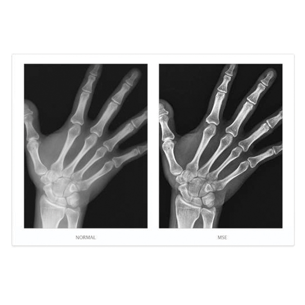 NAOMI Direct Digital Radiography CCD Imaging Sensor 7