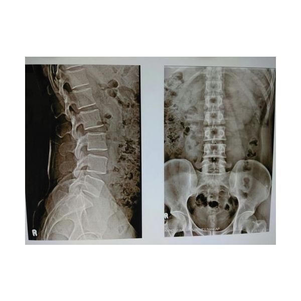 Orvee Medical X Ray Machine 4