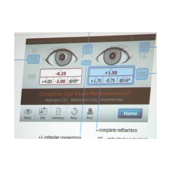 Plusoptix Vision Screen Equipment 4