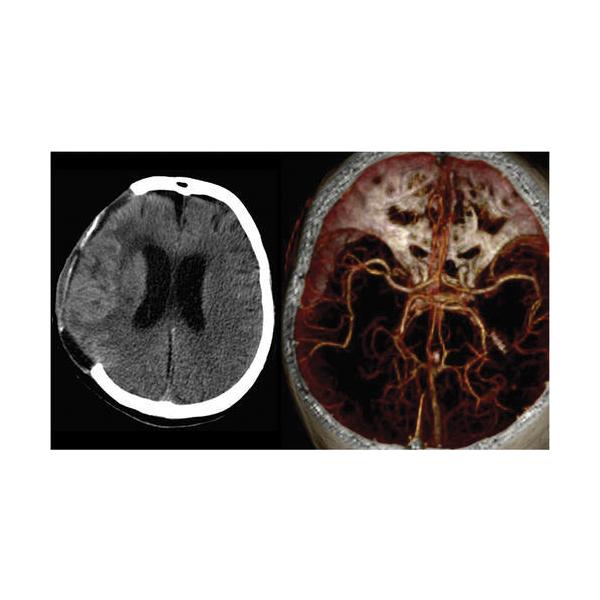 Samsung Neurologica Portable Full Body 32 Slice CT Scanner 8
