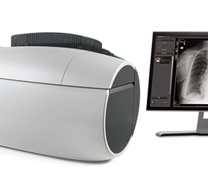 Carestream USA Computed Radiography