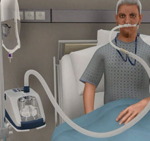 AIRVO 2 Oxygen Delivery System