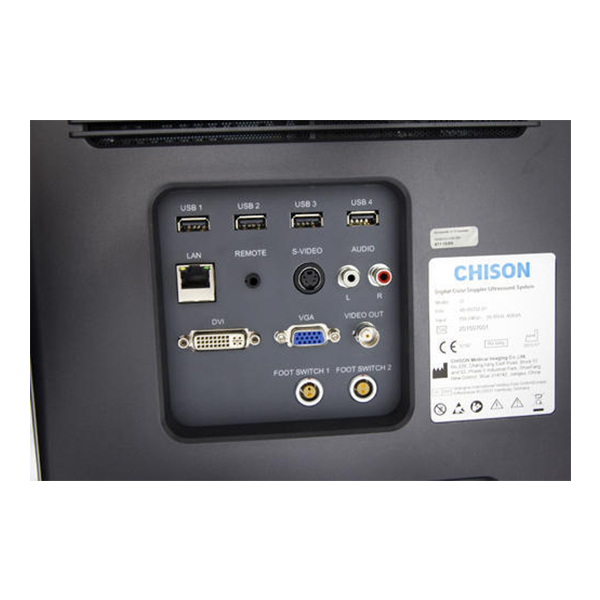 Chison Q Bit 5 Color Doppler System 4
