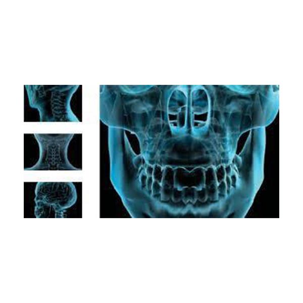 Planmeca PROMAX 3D Cone Beam CT Digital Dental Panoramic X Ray System 4