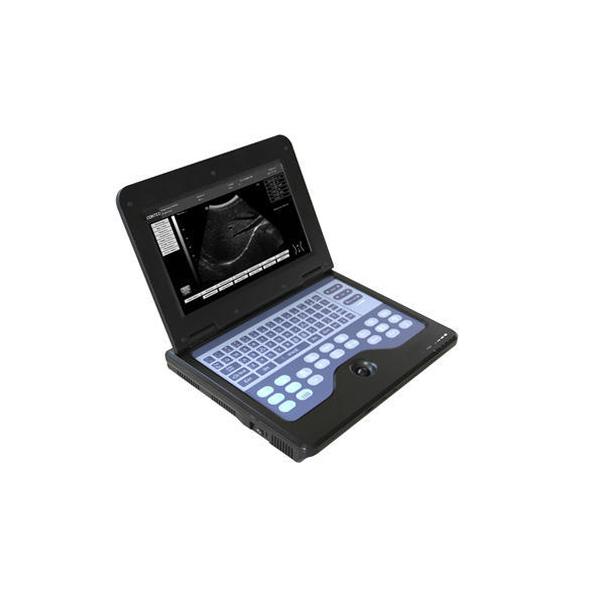 Portable Ultrasound Diagnostic System 1