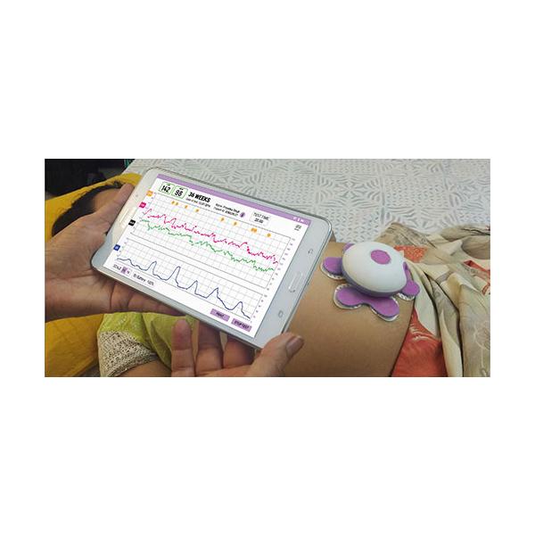 Fetal Lite – AI Powered Fetal Heart Rate FHR Monitor 1