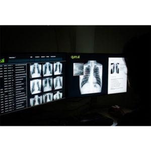 QXR – TB Screening