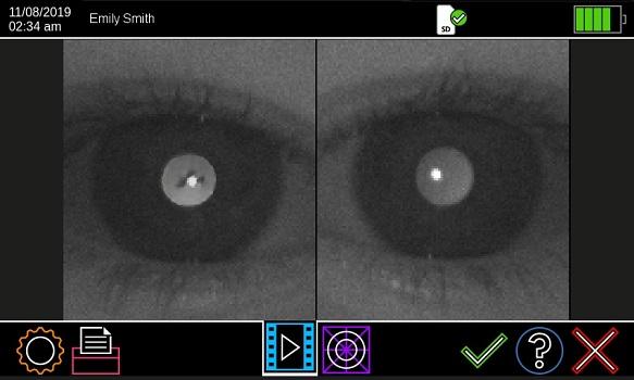 Plusoptix Pupillometer Anisometer 2