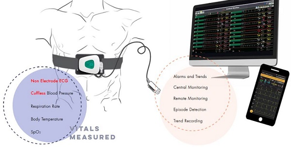 Telemetric patient monitoring