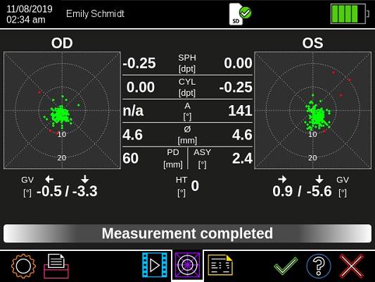 Plusoptix A12C result page measurement values 1