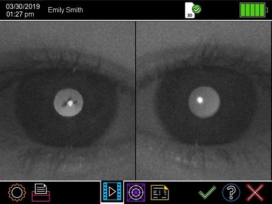Plusoptix A12 result page camera image cataract enlarged
