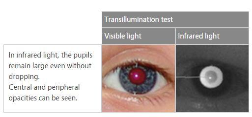Plusoptix Ophthalmoscopes 1