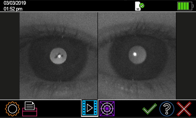 Plusoptix screenshots